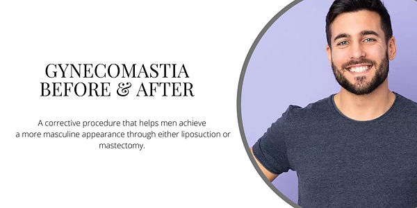 Gynecomastia Before & After.jpg