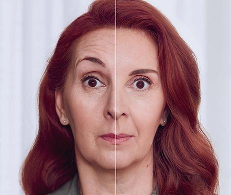 Botox Forehead Lines