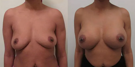 Breast Augmentation Before & After