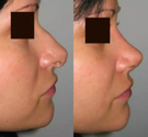 Rhinoplasty Before & After