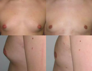 Gynecomastia Before & After