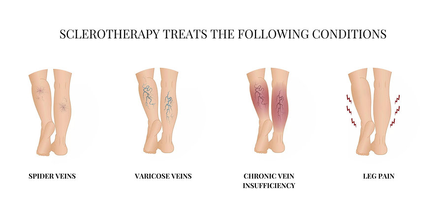 sclerotheraphy treats the following conditions.jpg