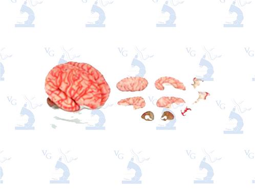 Modelo Cerebro Rosa con Arterias. Modelo CVQ7007