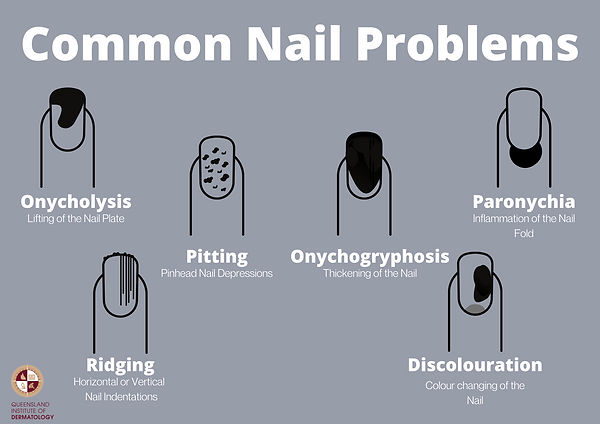 _Types of Nail Problems  (1).png