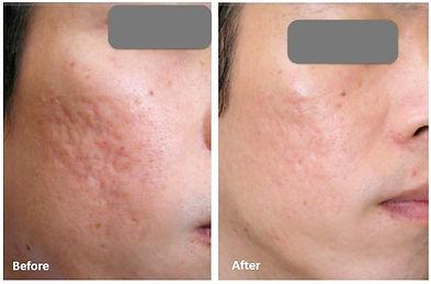 Microagulhamento cicatriz de acne porto alegre