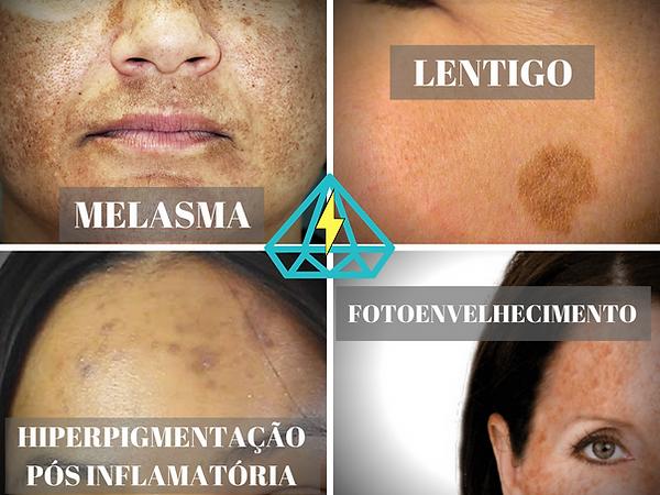 Tratamento de manchas na pele