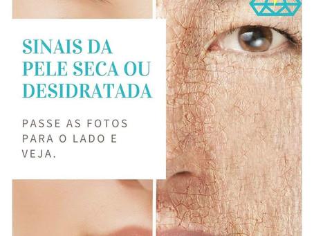 DESCUBRA 4 SINAIS DA PELE DESIDRATADA