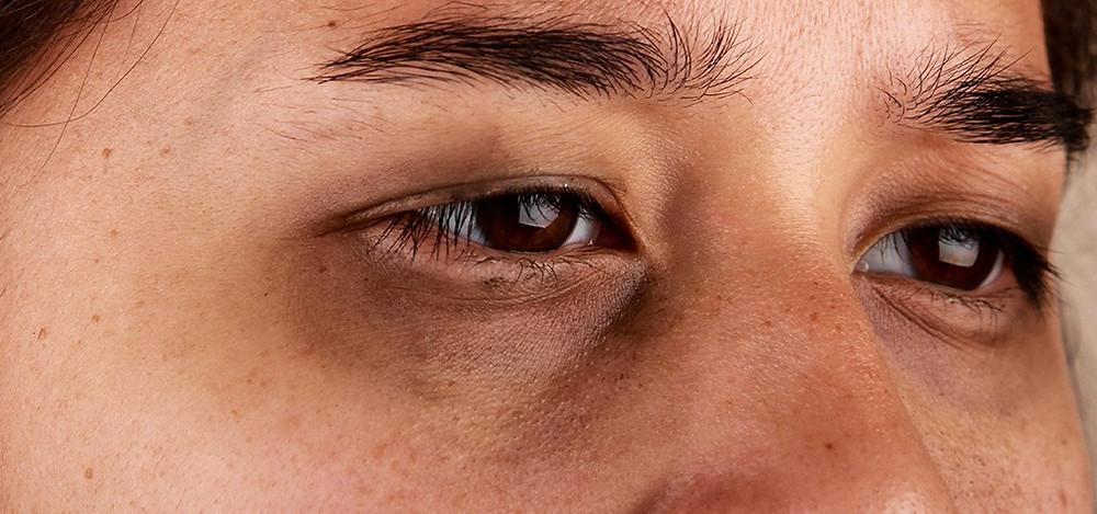 Tratamento olheiras porto alegre
