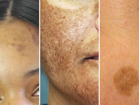 ATENÇÃO! Qual o tipo de mancha você tem na pele?