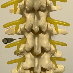 Lumbar and transforaminal epidural steroid injection, ESI, Spine Injection,Tuckahoe, Bronxville, Eastchester, Scardale, Westchester, Poughkeepsie, Hyde Park, Highland, Wappingers Falls, Dutchess, NYC, NY