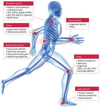 血小板血浆(PRP)疗法, Pain Management, 痛症, 鄭雙武, 威郡, 法拉盛, Westchester, 威斯特徹斯特郡, Flushing, 康復, 物理治療