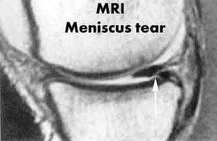 knee meniscus.jpg