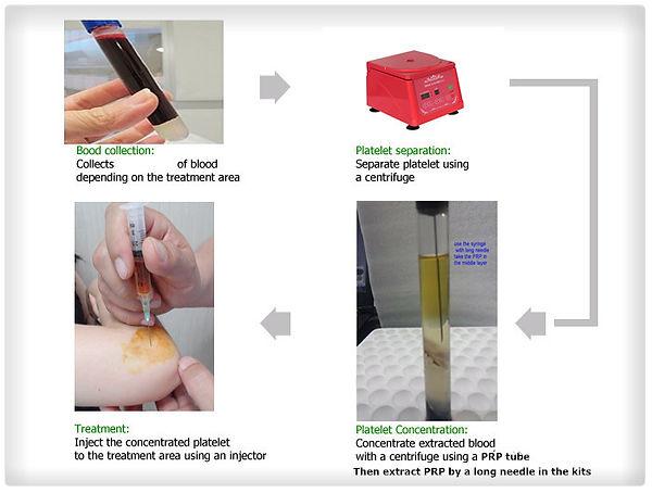 PRP, Platelet Rich Plasma, PRP treatment, PRP Therapy