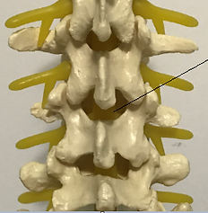 Lumbar epidural steroid injection, ESI, Spine Injection,Tuckahoe, Bronxville, Eastchester, Scardale, Westchester, Poughkeepsie, Hyde Park, Highland, Wappingers Falls, Dutchess, NYC, NY