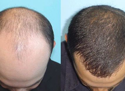 prp-for-hair-restoration.jpg