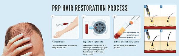 Platelet-Rich-Plasma-for-Hair-Growth.jpg