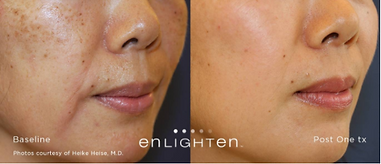 Enligten Laser, Tattoo Removal, Brown Spots, Pigmentation Removal, Laser Toning, Pico Genesis, Tuckahoe, Westchester, NYC, Bronx, Yonkers, Scarsdale, Bronxville, Eastchester, White Plains, Poughkeepsie, Dutchess, NY