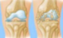 Knee Arthritis.jpg