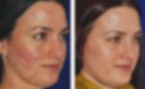 Medical SPA, Skincare, Skin care, Laser, Coolsculpting, Ultherapy, Vampire Facial, PRP facelift, Botox, Dermal filler, Facial, Hair Restoration, Microneedling, Microdermabrasion, facial rejuvenation, Spider vein, Wellness, Westchester, Scarsdale, Bronxville, Eastchester, Tuckahoe, Poughkeepsie, Dutchess