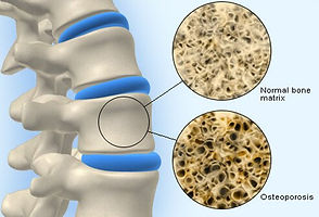 Kyphoplasty, Spinal Fracture, Vertebral Compression Fractur, Osteoporosis, Tuckahoe, Bronxville, Eastchester, Scarsdale, Yonkers, New Rochelle, Ardsley, Dobbs Berry, Hastings-on-Hudson, Westchester, Poughkeepsie, Bronx, NYC, NY