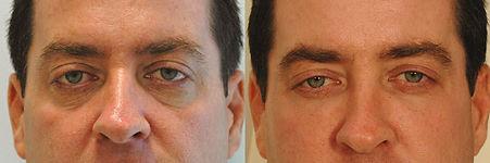 eye-bags-before-after.jpg