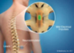 Spinal Cord Stimulator, Yonkers, White Plains, Tuckahoe, Eastchester, Bronxville, Westchester, Poughkeepsie, Rhinebeck, Kingston, Fishkill, Wappingers Falls, Dutchess, Bronx, NYC, Manhattan