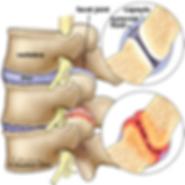Low Back Pain, Facet Joint Pain, Facet Joint Pain Treatment, Back Pain