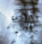 TFESI X-Ray4.PNG