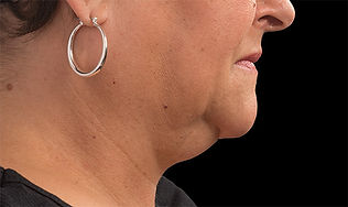 Turkey Neck, Neck lift, Aging neck, double chin, Tuckahoe, Westchester, NYC, Yonkers, Bronx, Bronxville, Scardale, Eastchester