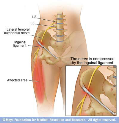 Fig 2. Lateral femoral cutaneous nerve, formed from L2 and L3