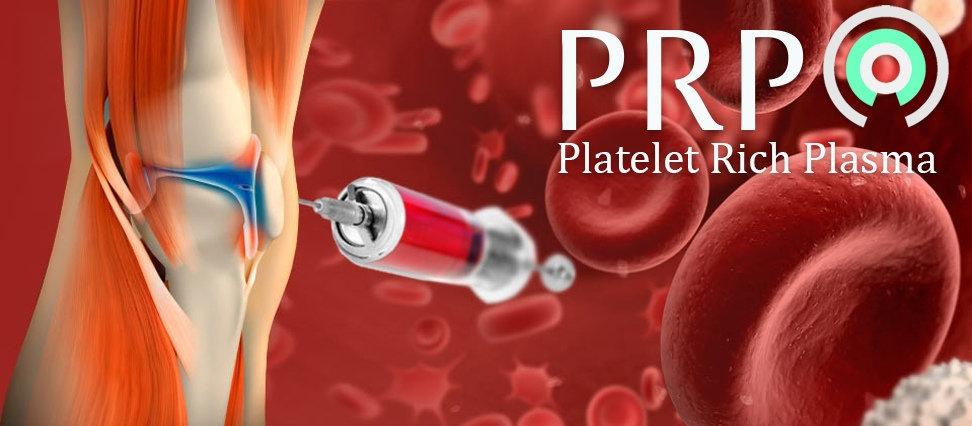 prp-banner-2.b47.jpg