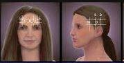 Botox for migraine.jpg