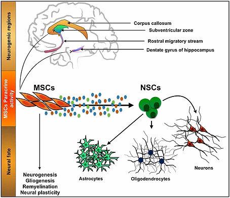 MSC brain.jpg