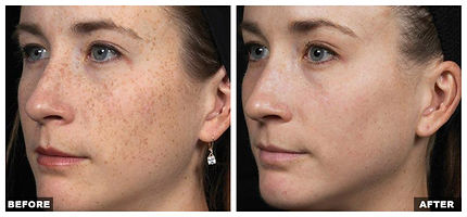 ICON Laser, Wrinkle, Facial Resurfacing, Brown Spots, Pigmentation removal, Hair Removal, Vessel Removal, Spider Vein, Tuckahoe, Westchester, NYC, Bronx, Yonkers, Scarsdale, Bronxville, Eastchester, White Plains, Poughkeepsie, Dutchess, NY