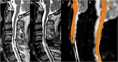 MSC spinal cord injury treatment 2.jpg