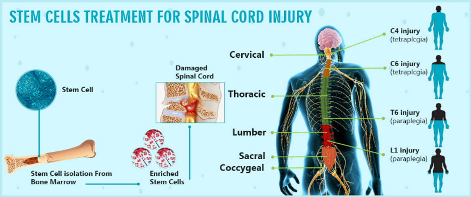 MSC-spinal-cord-injury.png