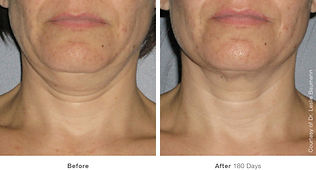 Double Chin, Neck lift, Aging neck, double chin, Tuckahoe, Westchester, NYC, Yonkers, Bronx, Bronxville, Scardale, Eastchester