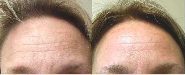 Pelleve, Radiofrequency,RF, Cellulite, Wrinkle reduction, Skin Tightening, Tuckahoe, Westchester, Bronx, Yonkers, Scarsdale, Bronxville, Eastchester, White Plains, Poughkeepsie, Dutchess, NY