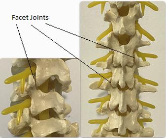 Facet Joint, Facet Joint Injection, Facet Joint Pain