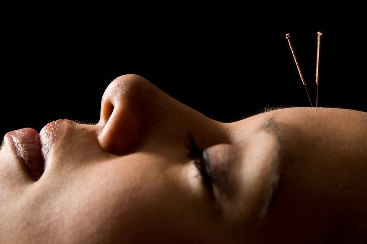 Acupuncture, Pain Management, Tennis elbow, Sciatica, Westchester, Tuckahoe, Bronxville, Scarsdale, Poughkeepsie, Arthritis, Infertility, Rheumatoid, Alternative Medicine, Neuropathy, Spasm, Fibromyalgia, Pain Syndrome, Wellnes Care