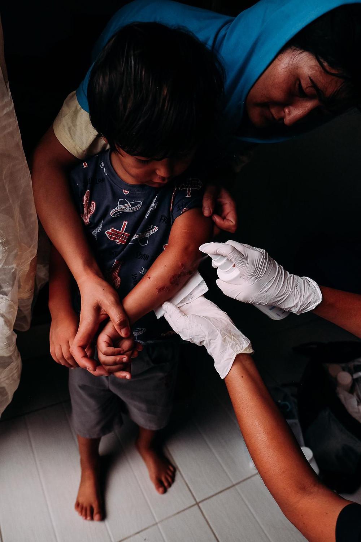 Refugee children receives treatment