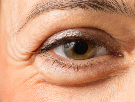 How To Deal With Puffy Eyes?
