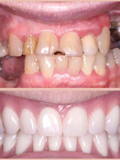 restoration-smiles-before-after-003.jpg