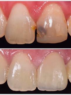 restoration-smiles-before-after-004.jpeg