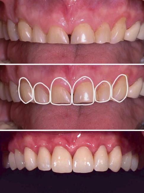 restoration-smiles-before-after-001.jpg