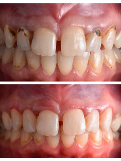 restoration-smiles-before-after-005.jpg