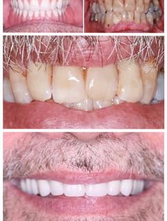 restoration-smiles-before-after-002.jpg