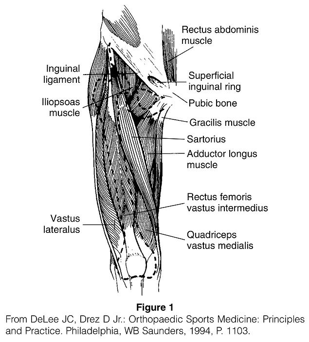 Quadriceps Strain.png