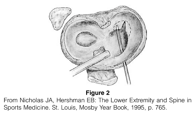 Meniscus Tear, Surgery For2.png