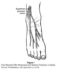 Superficial Peroneal Nerve Entrapment.pn